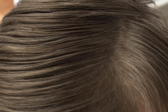 頭皮のニキビ