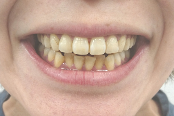 美歯口30DAYSホワイトニングキットの使用前の歯