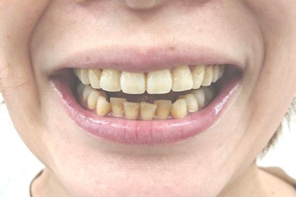 美歯口ホワイトニングキット1週間