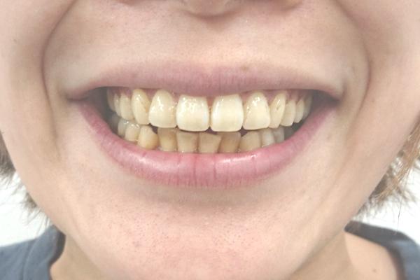 美歯口ホワイトニングキット1回目