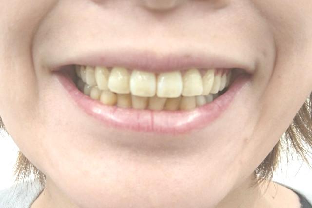 美歯口ホワイトニングキット3週間
